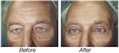 Blepharoplasty or Eyelid Lift